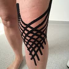 Lymphedema Taping